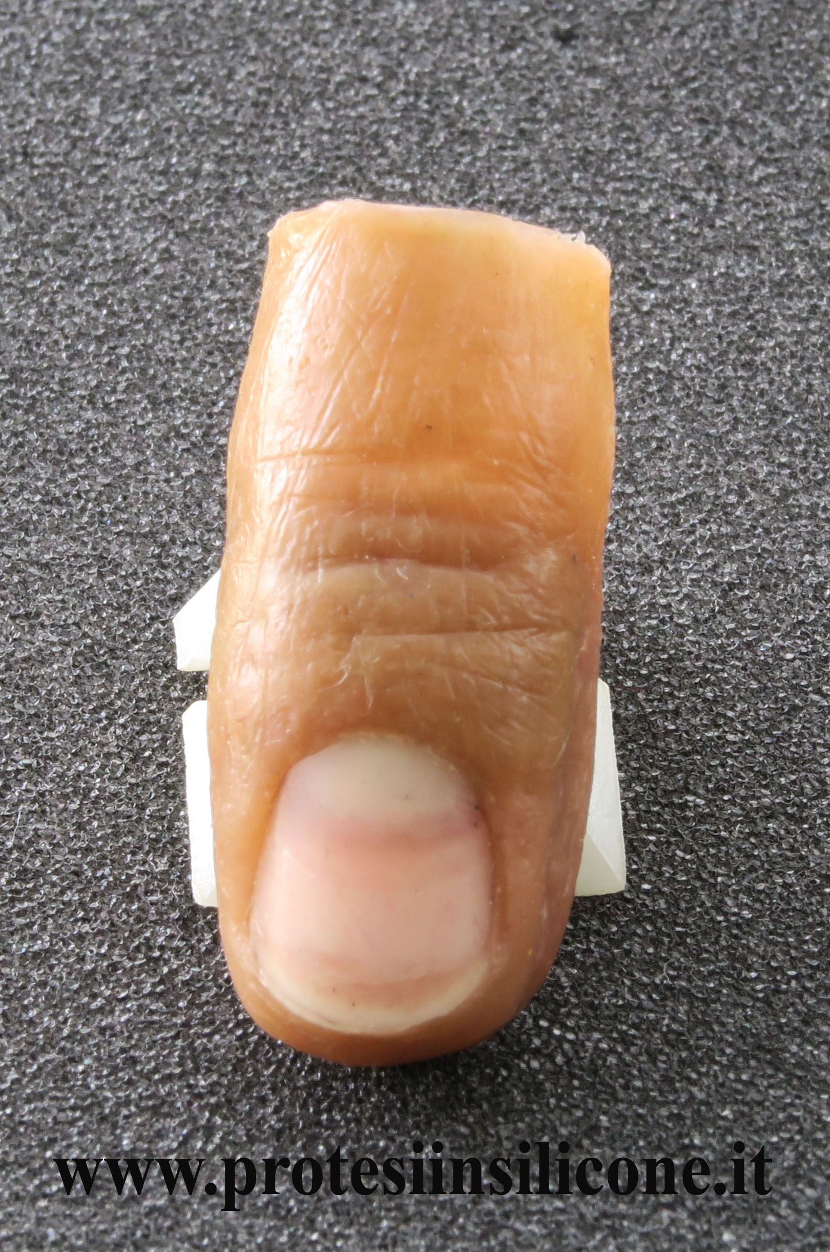 partial prosthesis of finger